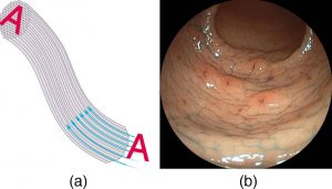 Picture (a) shows how an image A is transmitted through a bundle of parallel fibers. Picture (b) shows an endoscope image.
