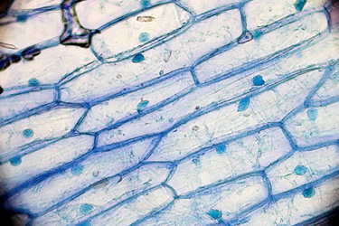 Cell membranes of onion cells, similar in appearance to a section of a brick wall.