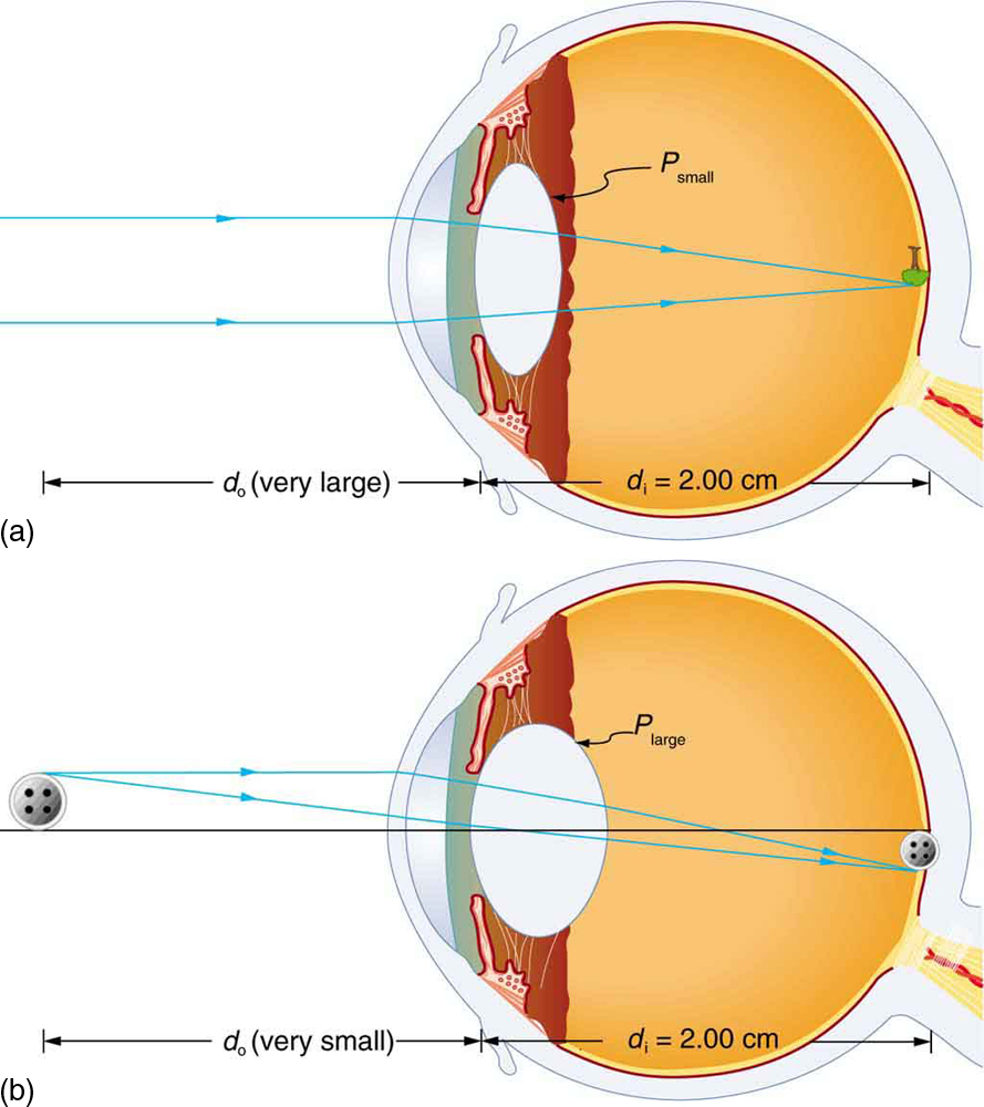 Two cross-sectional views of eye anatomy are shown. In part a of the figure, parallel rays from distant object are entering the eye and are converging on the retina to produce an inverted image of the tree shown above the principle axis. The interior lens of the eye is relaxed and least rounded, given as P small. Distance of image d i is equal to two centimeters, which is the measure of the distance from lens to retina. Distance of object d o is given as very large. In part b of the figure, rays from a button, which is a nearby object, are shown to diverge as they enter the eye. The interior lens of the eye, P large, converges the rays to form an image at retina, below the principle axis. Distance of image d i is equal to two centimeters, which is the measure of distance from lens to retina. Distance of object d o is given as very small.