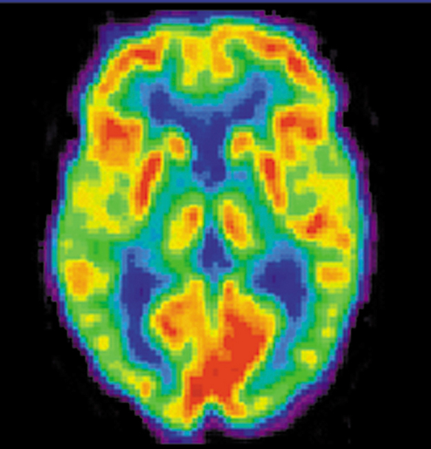 A brain scan. Different regions of the brain are shown in different colors.